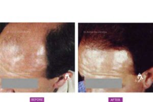 Why Pune is the best destination for Hair Transplant?