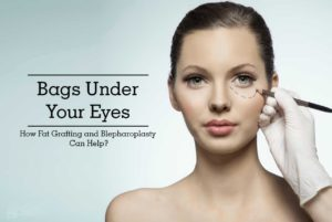 Bags Under Your Eyes – How Fat Grafting and Blepharoplasty Can Help?
