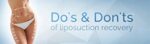 How to Recover Quickly from Liposuction Surgery