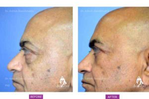 Case 2: Upper and Lower Blepharoplasty Side View