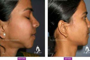 Case 3: Chin Augmentation Side View