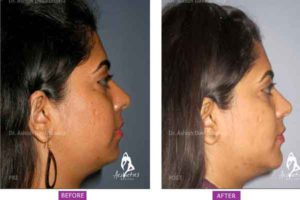 Case 1: Chin Augmentation Side View