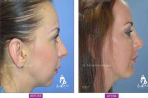 Case 2: Chin Implant Side View