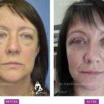 Case 1: Upper and Lower Blepharoplasty, Fat Grafting