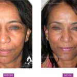 Case 5: Upper and Lower Eyelid Blepharoplasty