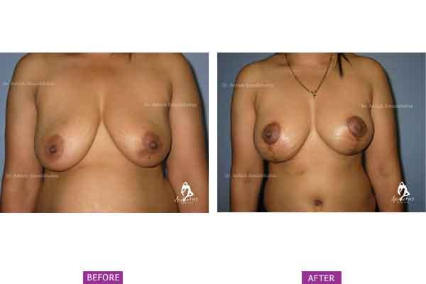 Breast Lift Case 3: Post Pregnancy Sagging/ Deflation