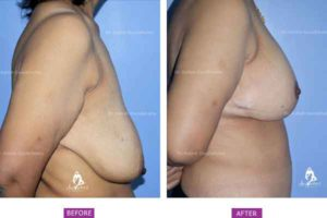 Breast Lift Case 2: Side View