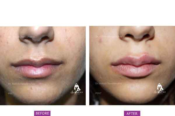 Case 2: Lip Surgery with Fillers