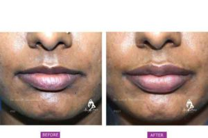 Case 3: Lip Augmentation and Fillers