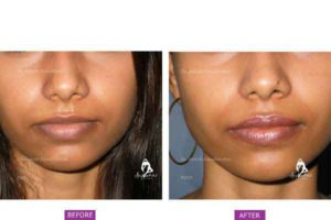 Case 4: Lip Shaping and Fillers
