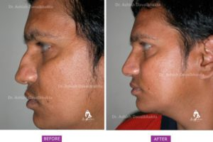 Nose Surgery Case 1: Correction of Deviation and Hump : Side View