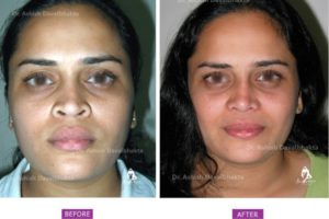 Rhinoplasty Case 5: Augmentation with Alar Flare Correction: Front View