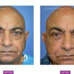 Case 2: Upper and Lower Blepharoplasty, Fat Grafting