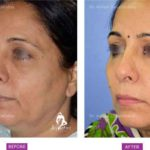Case 3: Upper and Lower Eyelid Surgery Side View