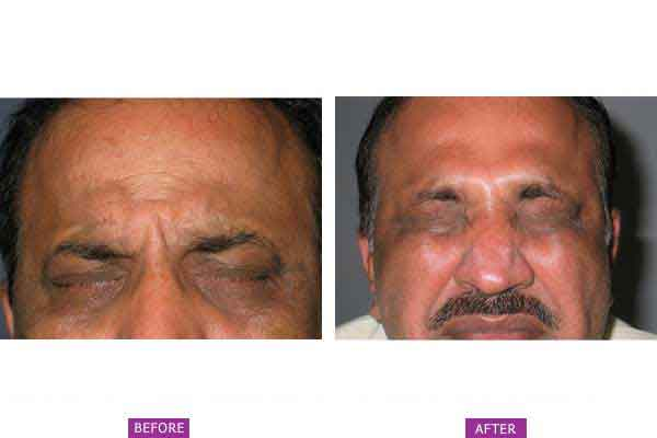 Case 1: Botox Treatment