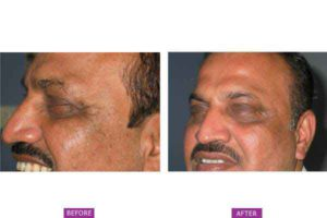 Case 1: Botox Treatment Side View (b)