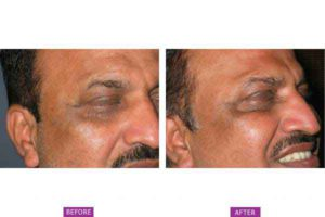 Case 1: Botox Treatment Side View (a)