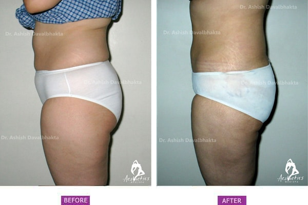 Case 1: Standard Liposuction Side View