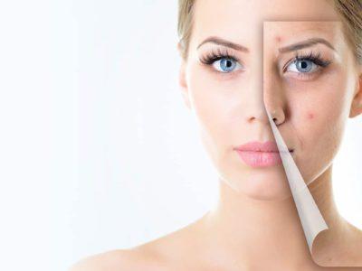 Acne Treatment – Glycolic Mask