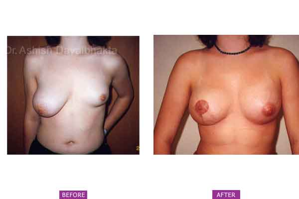 Asymmetrical Breasts Surgery Case 1: Tuberous Breast, Left Hypoplasia
