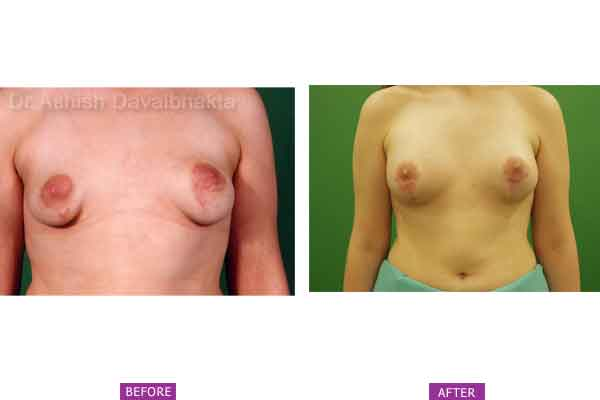 Asymmetrical Breasts Surgery Case 2: Bilateral Operated Tuberous Breast