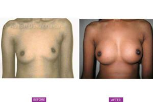 Asymmetrical breasts surgery Case 4: Bilateral Hypoplasia with Nipple Asymmetry