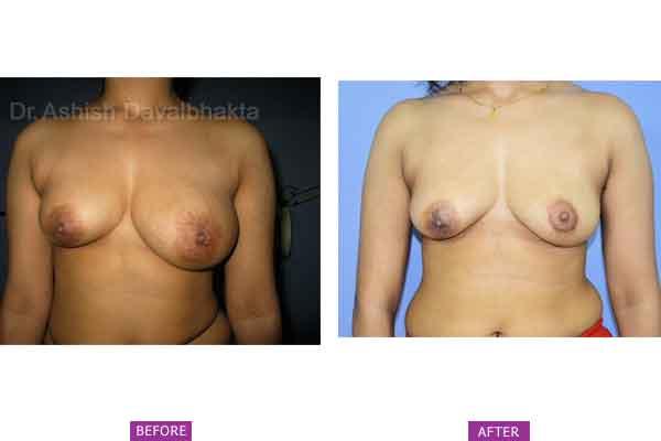 Asymmetrical Breasts Surgery Case 5: Left Breast Hyperplasia