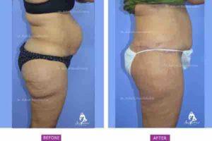 Body Buttock Lift