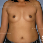 Breast Augmentation Case 2: Grade 0 ptosis, double A cup