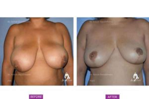 Case 1: Breast Reduction by Superomedial Pedicle