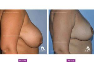 Case 1: Breast Reduction Surgery (Side View)