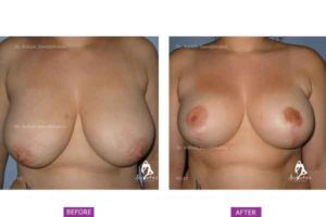 Breast Reduction Case 1: Superomedial Pedicle Breast Reduction Surgery
