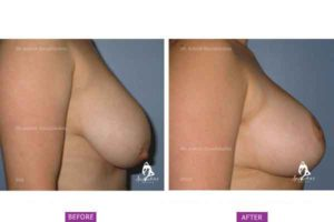 Case 1: Breast Reduction Side View