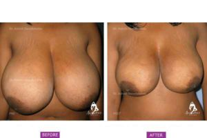 Case 2: Virginal Hypertrophy of Breast Treated by Liposuction Only