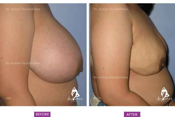 Case 3: Breast Reduction Surgery (Side View)