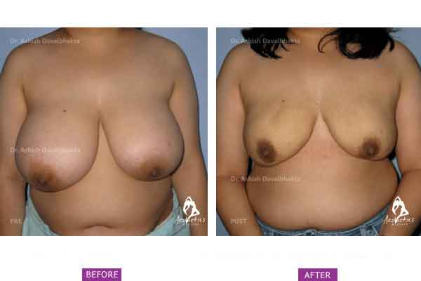 Case 3: Breast Reduction by Liposuction
