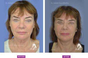 Facelift Case 4: Upper and Lower Eyelid Blepharoplasty, Facelift