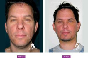 Facelift Surgery Case 7