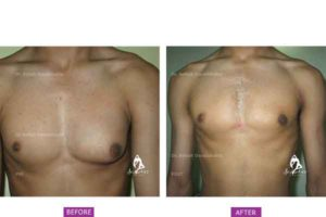 Case 3: Unilateral Left Gynaecomastia Treated by Gland Excision
