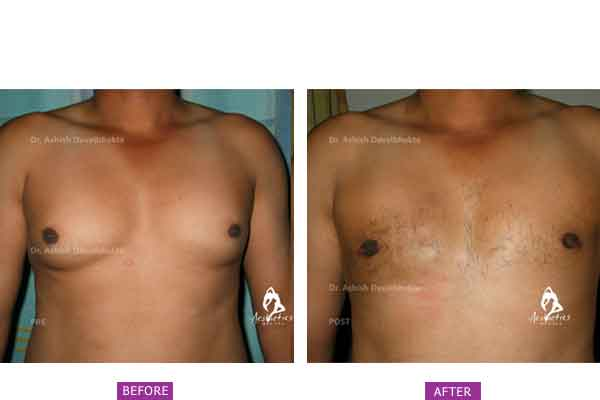 Case 4: Grade 2 Gynaecomastia Treated by Gland Excision