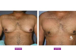 Case 9: Grade 2 Gynaecomastia Treated by Liposuction and Gland Excision