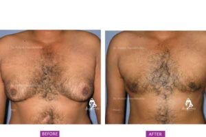 Case 2: Grade 2 Gynaecomastia Treated by Liposuction and Gland Excision