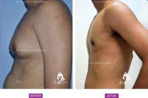 Gynaecomastia Correction Case 6: Side View