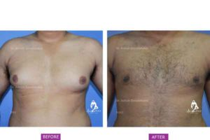 Case 7: Grade 1 Gynaecomastia Treated by Liposuction