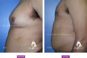 Gynaecomastia Surgery Case 7: Side View
