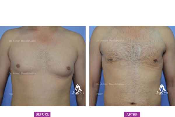 Case 8: Grade 1 Gynaecomastia Treated by Vaser High Definition Liposuction