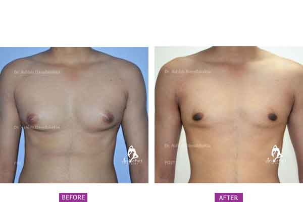 Case 6: Grade 2 Gynaecomastia Treated by Vaser High Definition Liposuction and Gland Excision