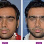 Hair Transplant Case 1 : Medical Hair Transplant : Front View