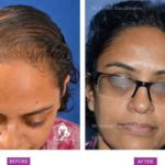 Case 2 : Medical Hair Transplant : Front View