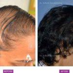Case 2 : Medical Hair Transplant : Top View